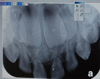 Teeth X-Ray
