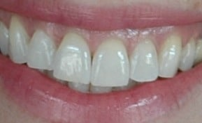 After 2Hr Whitening Treatment