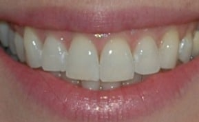 Before 2 Hr Whitening Treatment