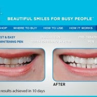 Prime Time Smile Teeth Whitening Giveaway