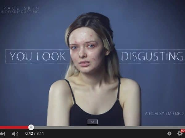 Millions of People Have Commented on Her Acne #YouLookDisgusting